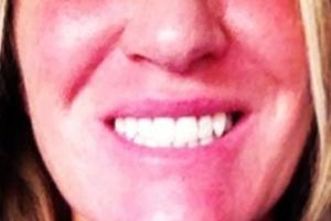 A very happy client with her lovely whitened teeth.
