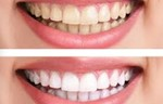 Xtreme Teeth Whitening result;