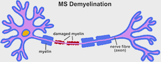 MS Demyelination