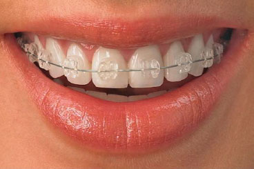 adult braces of Cost