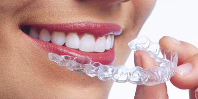 Five Options to Get Affordable Braces for Adults - Colgate