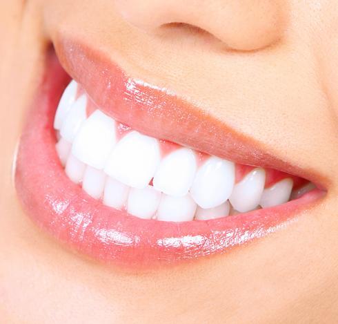 Teeth Straightening in London
