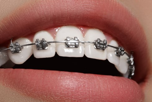Image result for teeth braces