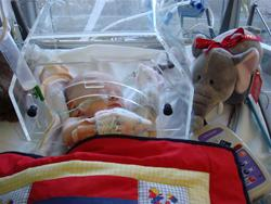 Baby having treatment in Southampton PICU