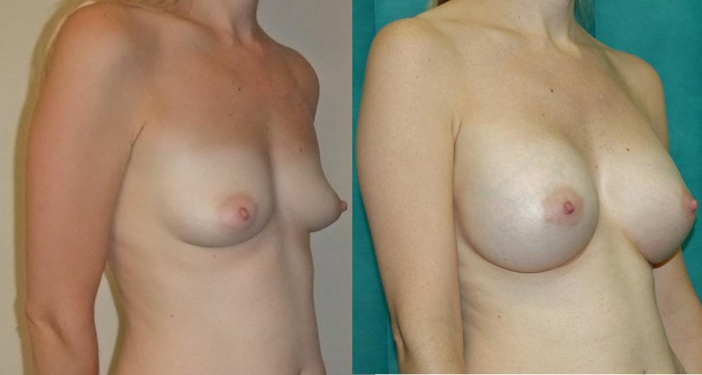 Breast enlargement augmentation boob job
