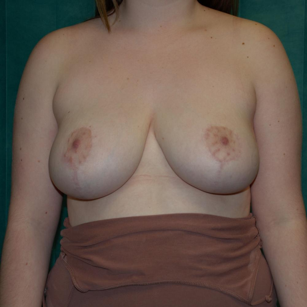 Breast Reduction Post-Op