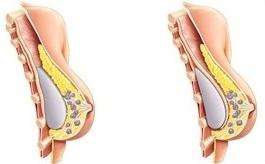 Breast Augmentation Enlargement Hampshire