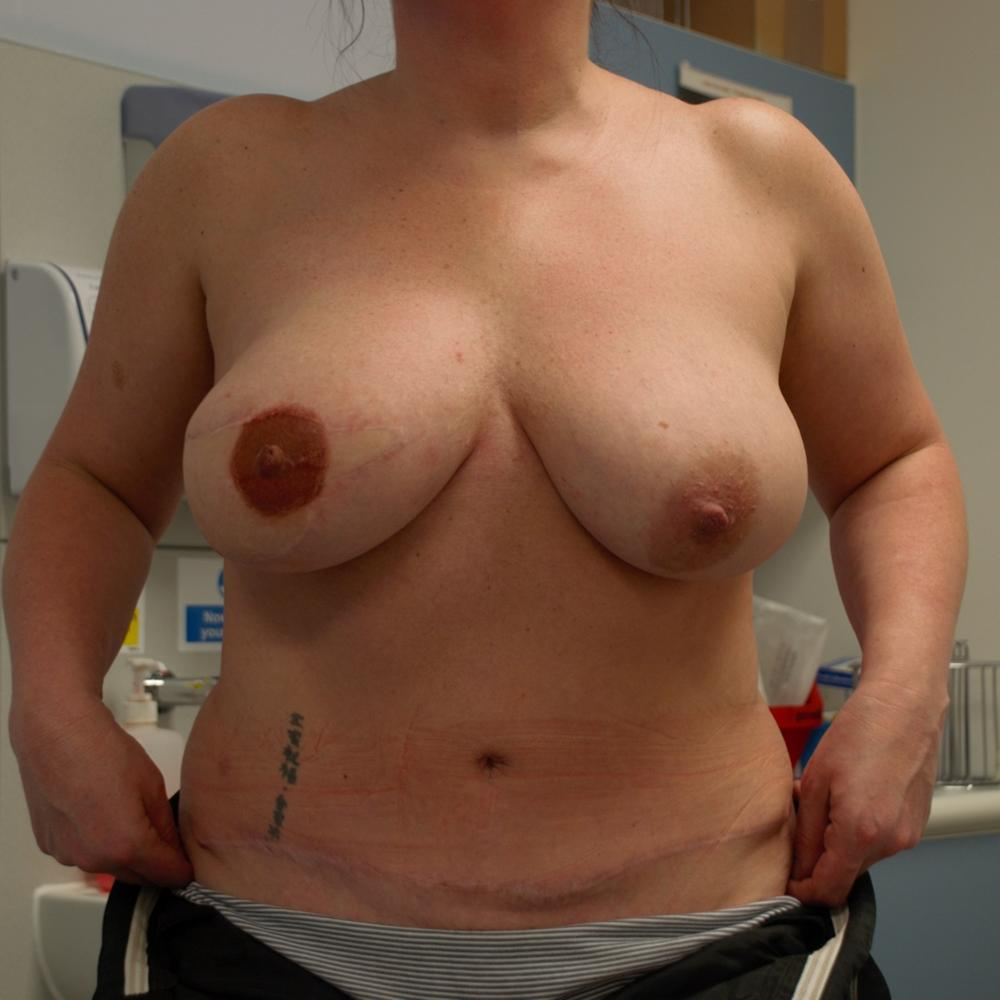 Breast DIEP Reconstruction Post-Op