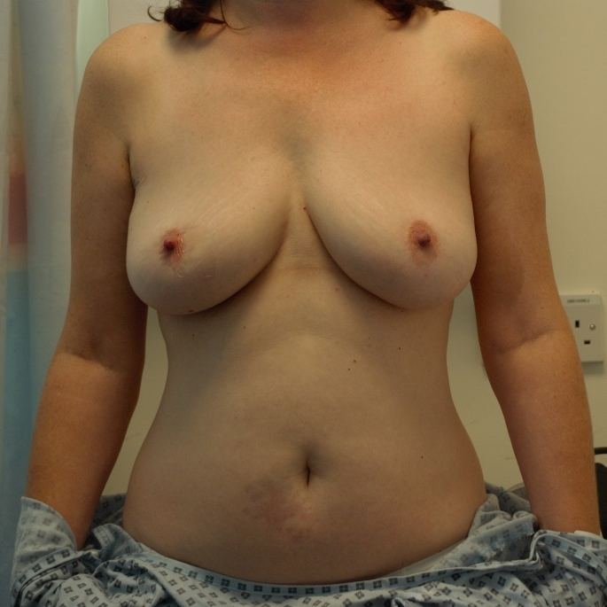 Breast DIEP Reconstruction Pre-OP