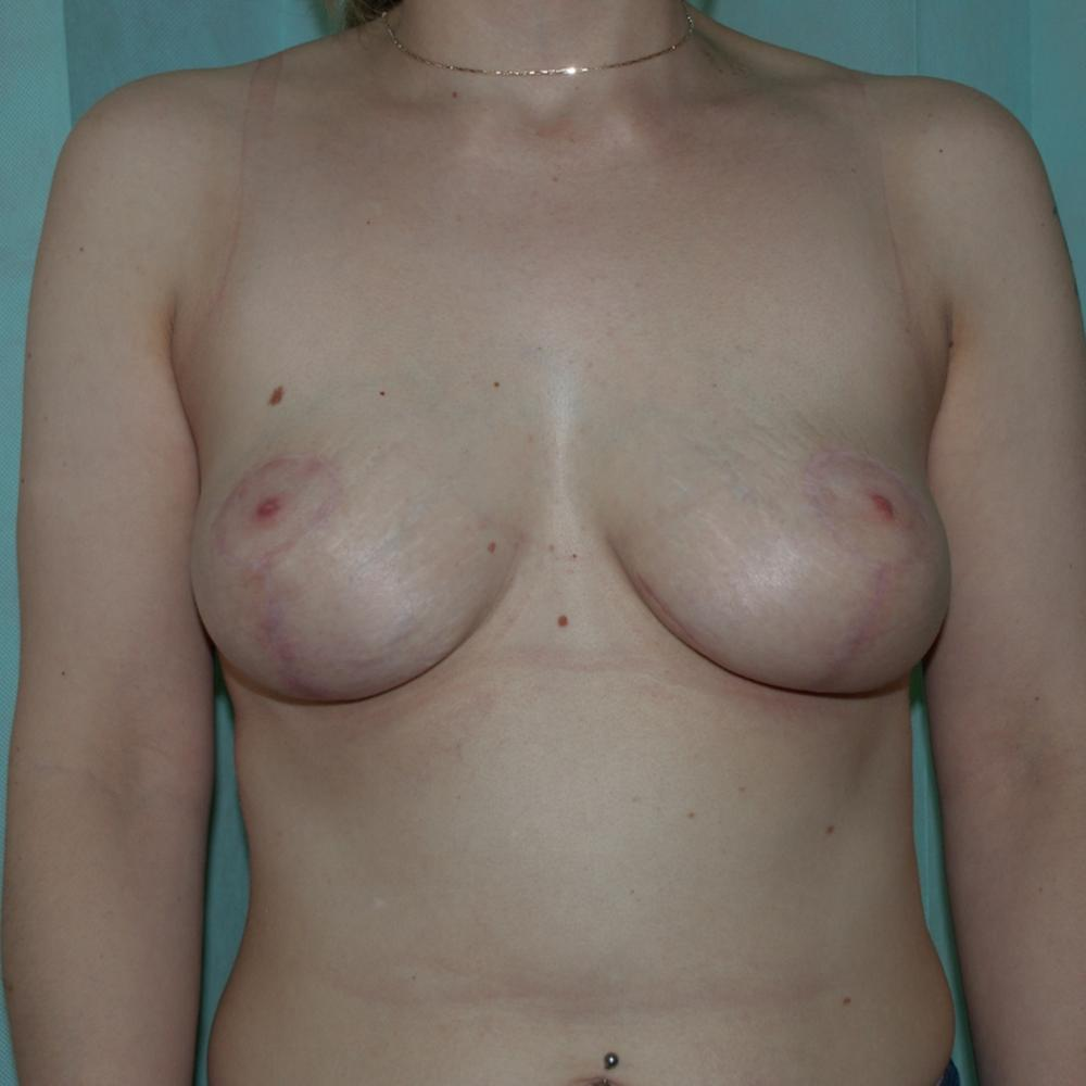 Breast Uplift Mastopexy Post-Op