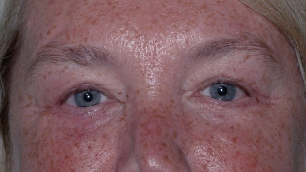 Upper and Lower Blepharoplasty Post-Op