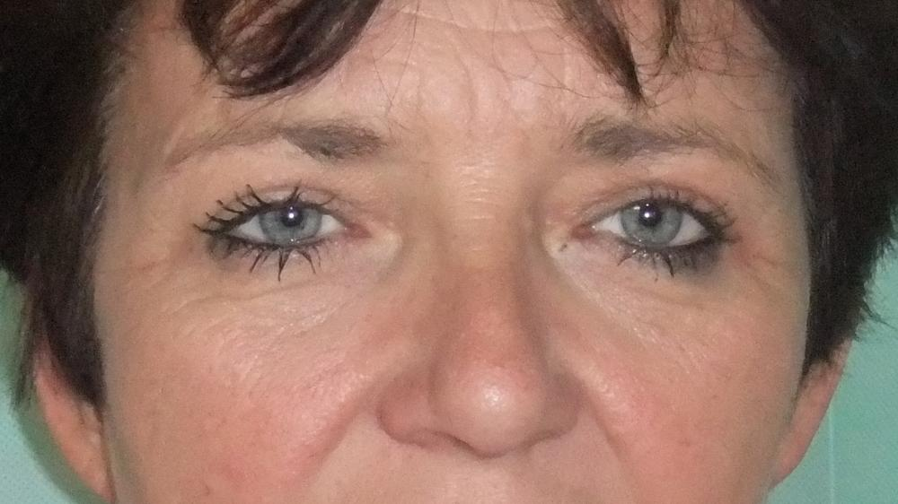 Upper Blepharoplasty Post-Op