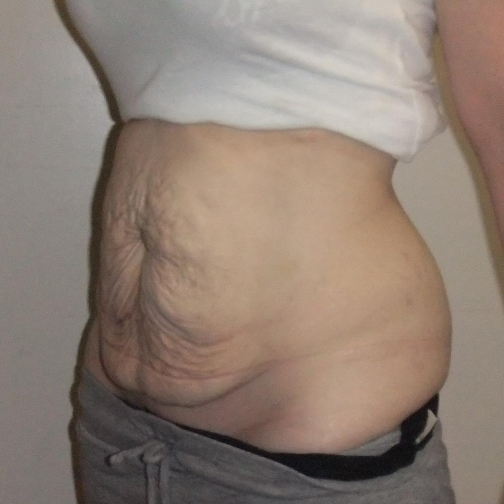 abdominoplasty tummy tuck
