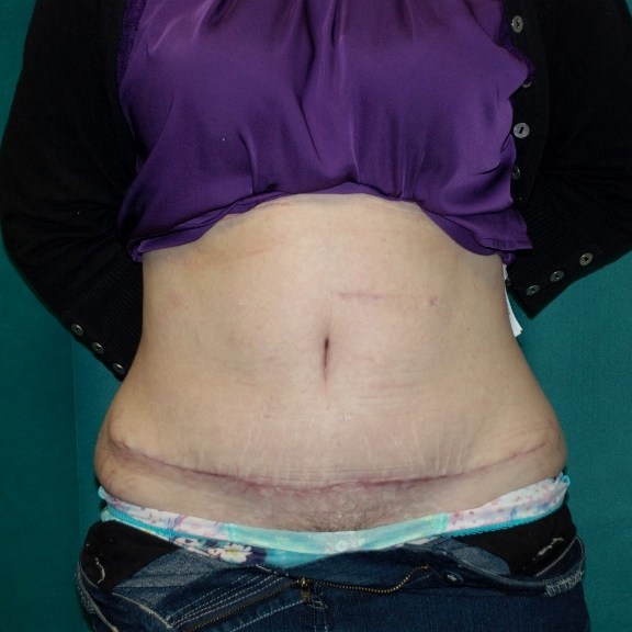 Abdominoplasty Post-Op