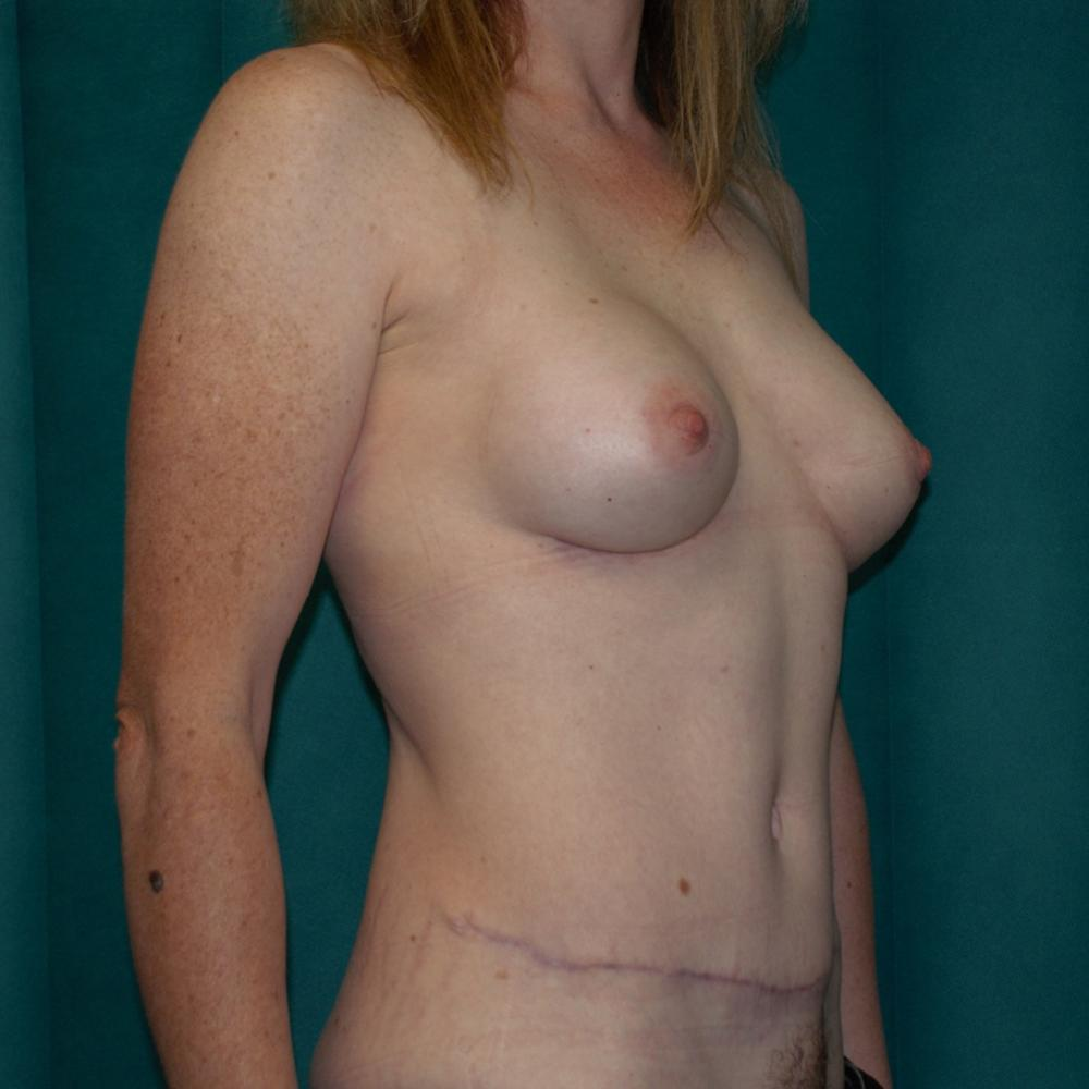 Abdominoplasty and Breast Augmentation Pos-Op