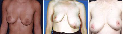 Breast Asymmetry Hampshire