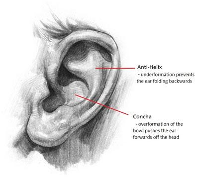 Pinnaplasty Ear Hampshire