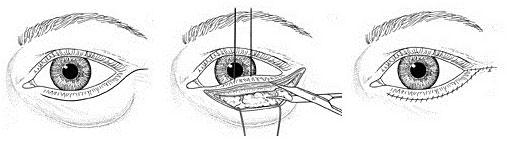 Blepharoplasty Eye Lid Reduction Hampshire