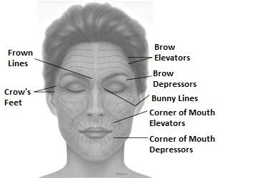 Botox Non-Surgical Rejuvenation