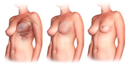 Breast Augmentation Implant Hampshire