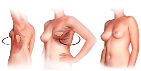 Breast Augmentation Implant Autologous Tissue Hampshire