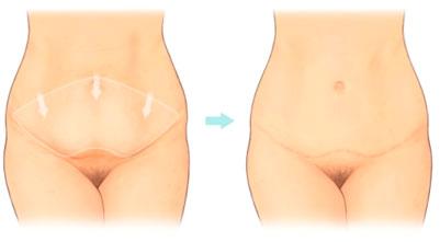 Abdominoplasty Tummy Tuck Hampshire