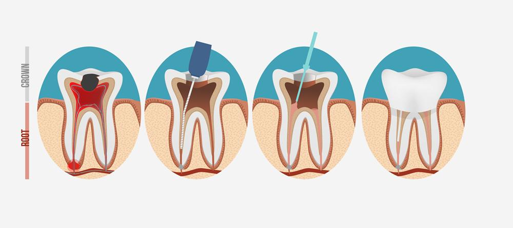 Root-canal-in-west-london
