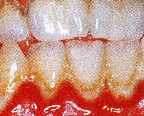 Dental Hygienist in London