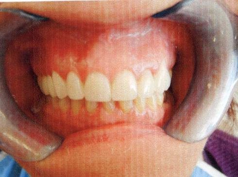 Cosmetic Dentistry in West London