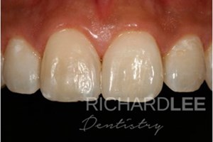 Mark broke his front tooth playing basketball. Dr Lee rebuilt the missing fragment of tooth by layering composite resin to match the colour, translucency and surface texture. This restoration won in FMC's 2009 Smile Awards.