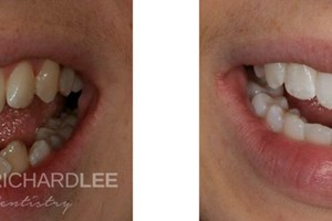 Sarah disliked the crowding of her lower teeth which she felt was getting worse with time. Invisalign was used to straighten her teeth, this was followed by tooth whitening.
