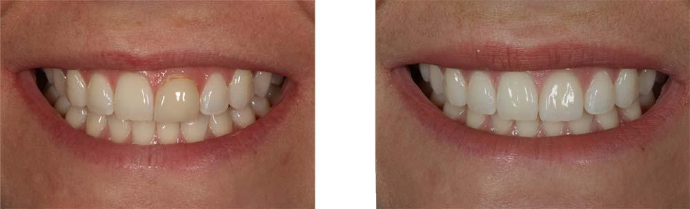 Teeth whitened, with 2 ceramic veneers