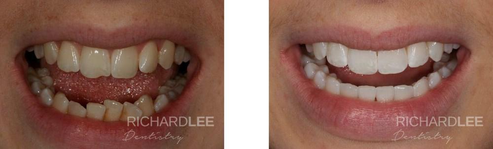 Sarah's teeth straightening and whitening