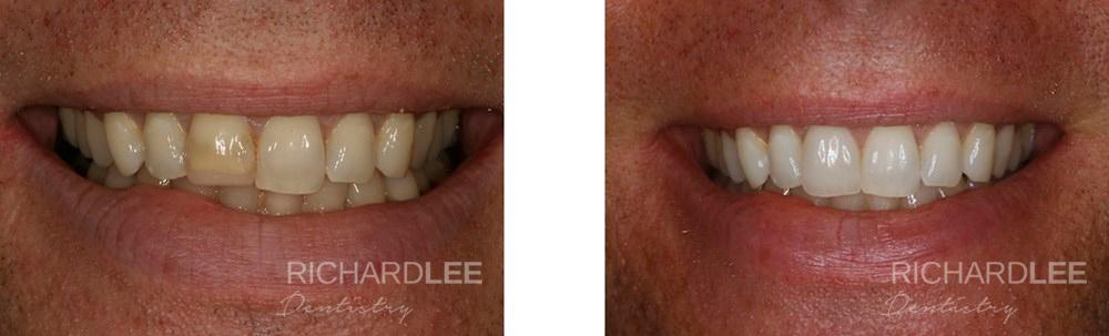 Dark teeth transformed by placing single porcelain veneer
