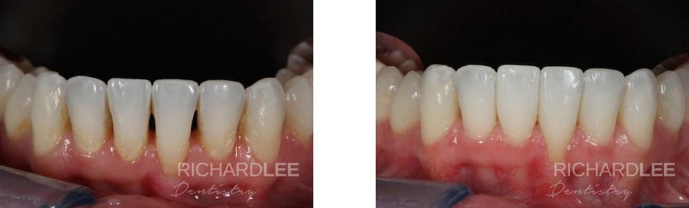 Black triangle removal through composite bonding