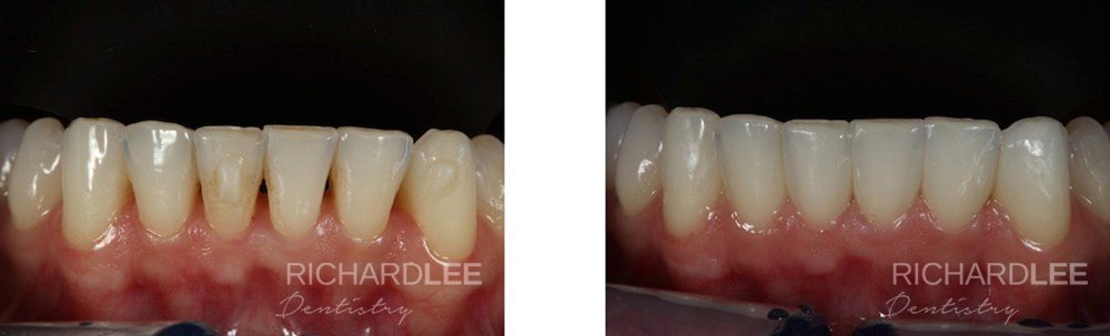 Black triangles removed with composite bonding