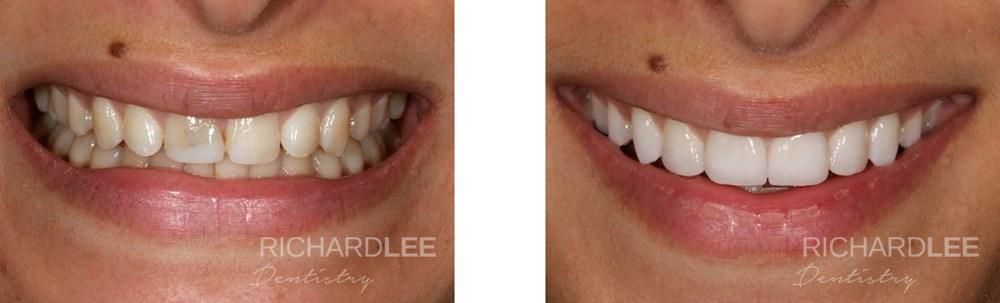 Teeth whitened, veneers added
