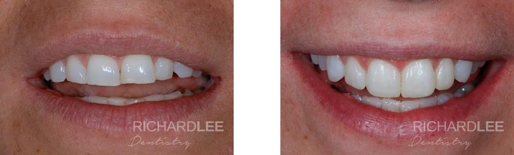 Worn teeth built up using composite resin