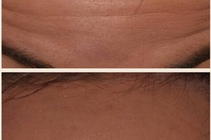 Anti Wrinkle treatment, before and after.