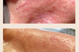 Before and after 1, thread vein treatment.
