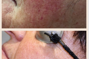 Providing long term solution to thread veins, rosacea and spider veins.