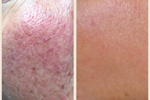 Before and after 3 treatments.