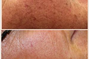 Pigmented lesions such as sun spots were successfully removed. Creating a more flawless, youthful appearance.