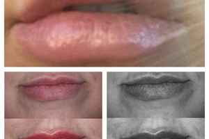 This Client came in to us after previously being injected with filler without consideration of her natural lip anatomy. The client was left with over filled, unsymmetrical, lumpy lips!