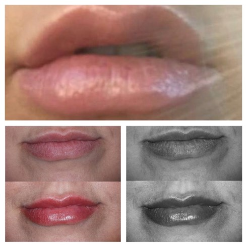 This Client came in to us after previously being injected with filler without consideration of her natural lip anatomy. The client was left with over filled, unsymmetrical, lumpy lips! Dr Jeremy Isaac used 0.5ml to balance and correct. Work in progress!