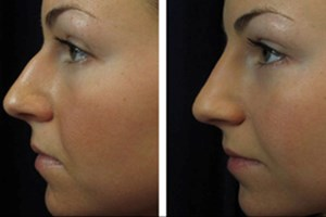 Non-Surgical Rhinoplastry
