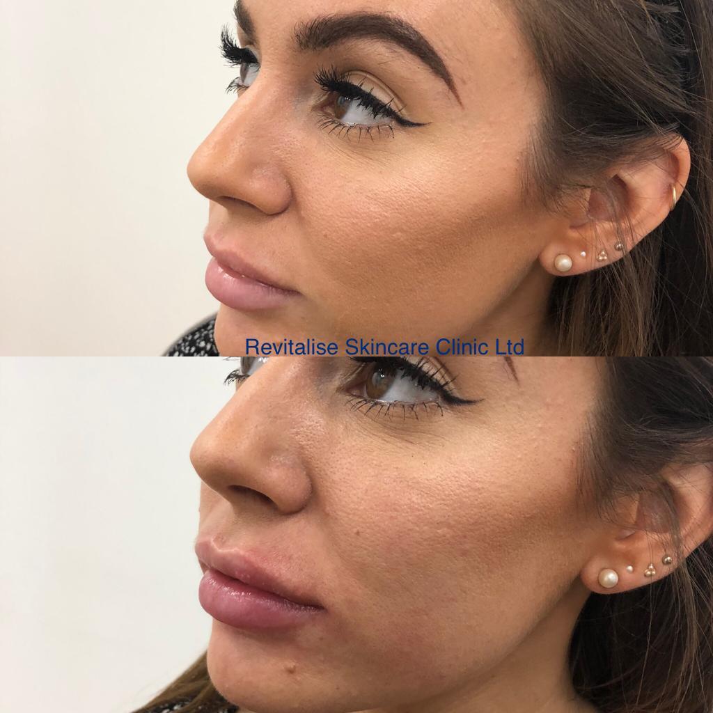 Dermal Fillers : Revitalise Skin Care Clinic