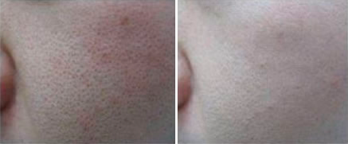 Before After Revitalise Skin Care Clinic