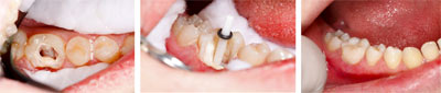 root canal tratment