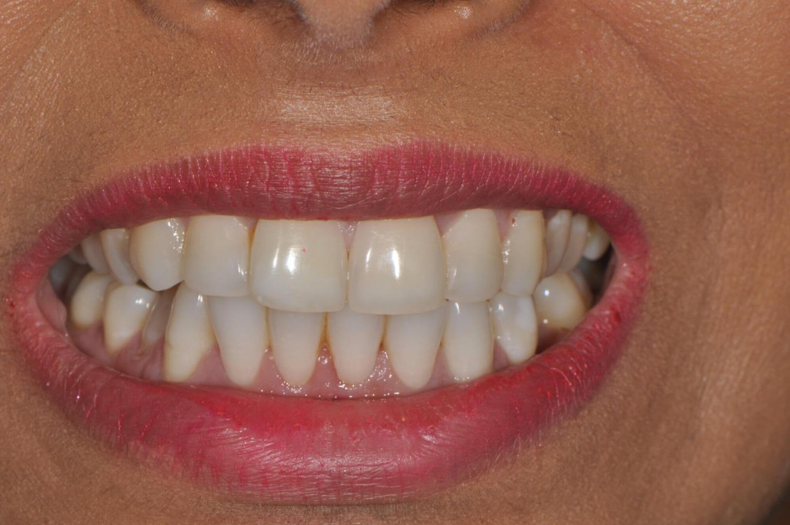 Image of Teeth Whitening, Female